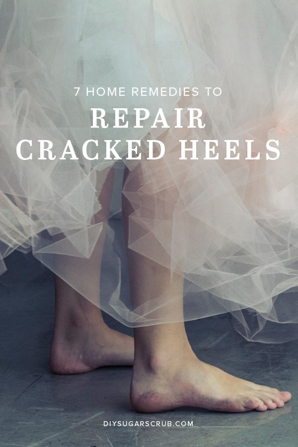 7 Homade Remedies to Repair Cracked Heels