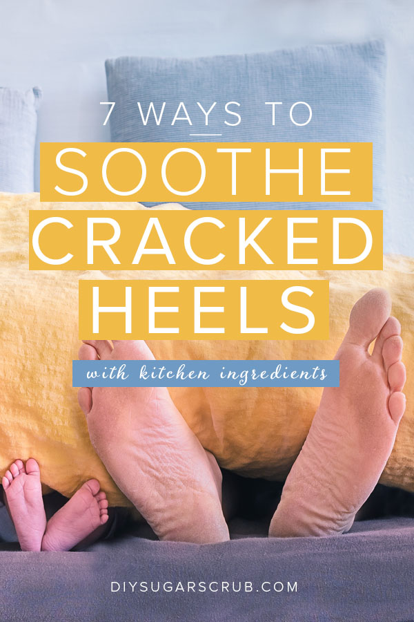 7 Ways to soothe cracked heels with simple kitchen ingredients